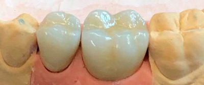 Escola-turbula-ceramica-dientes-2