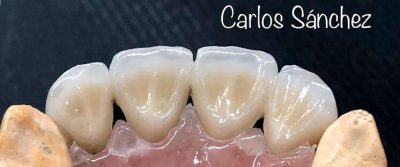 Escola-turbula-ceramica dientes-3